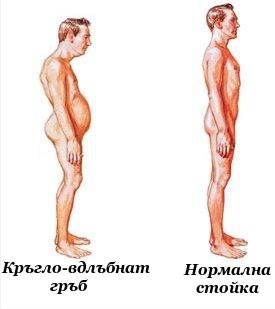 Кръгло-вдлъбнат гръб