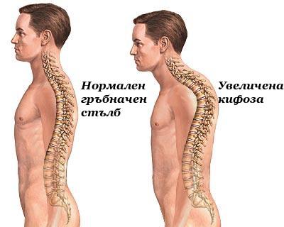 Увеличена гръдна кифоза