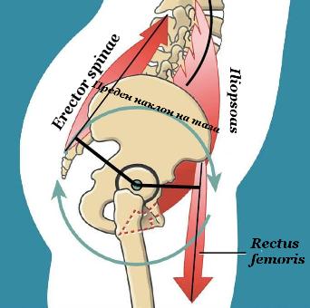 Преден наклон на таза (anterior pelvic tilt)