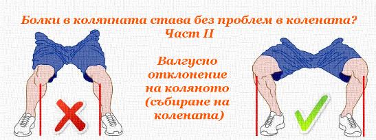Валгусно отклонение на коляното (събиране на колената)