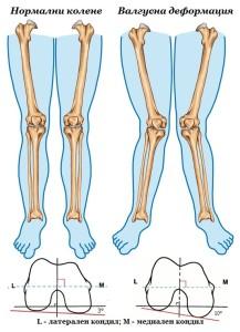 Валгусна деформация на коляното