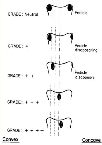 Измерване на ротацията по методът на Nash и Moe