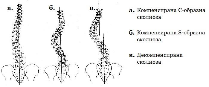 Компенсирана и декомпенсирана сколиоза