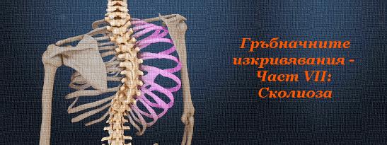 Гръбначните изкривявания - Част VII: Сколиоза