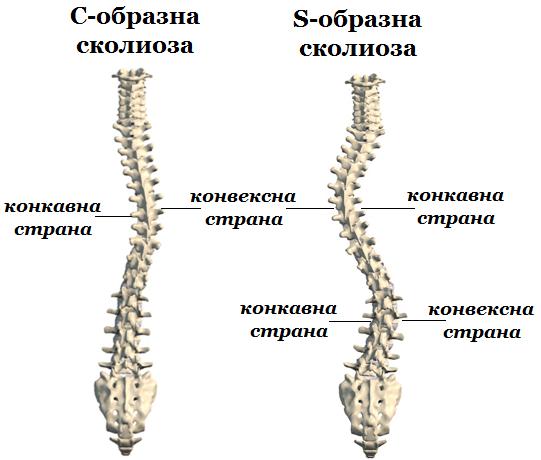 C- и S-образна сколиоза