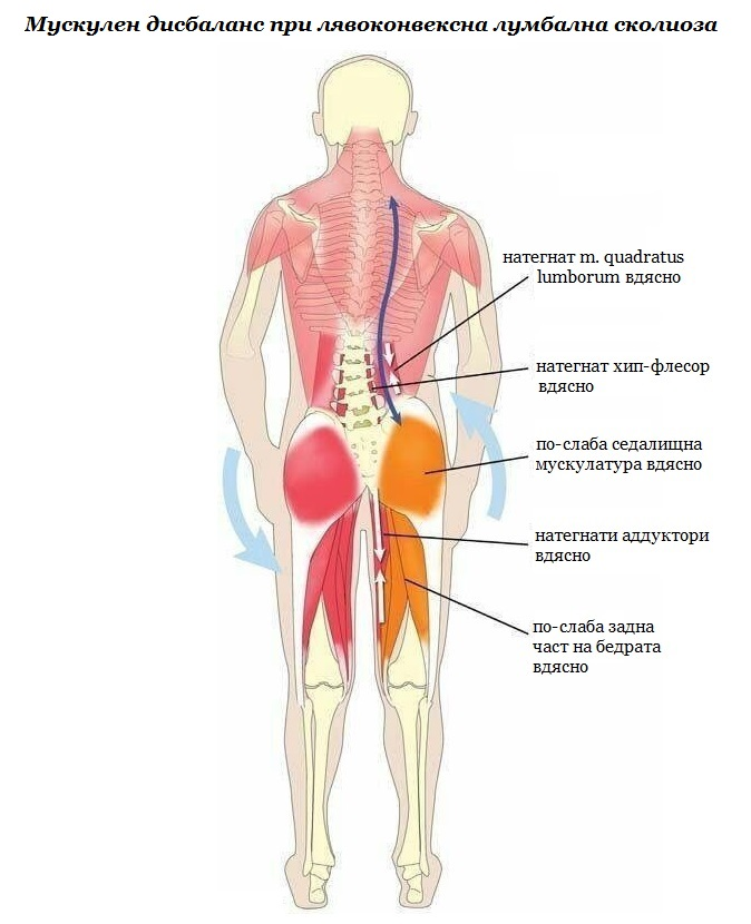 Мускулен дисбаланс при лявоконвексна лумбална сколиоза